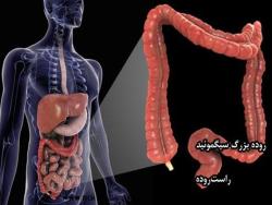 پاورپوینت بررسی سرطان کولو رکتال